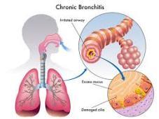penyakit brondhitis